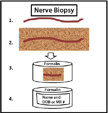 Nerve Biopsy